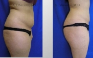 liposuction-beverly-hills-3