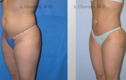 liposuction-beverly-hills-2