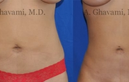 liposuction-beverly-hills-1