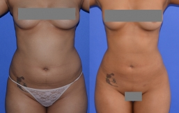 Liposuction Patient 7
