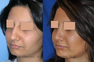 rhinoplasty-nose-beverly-hills-2