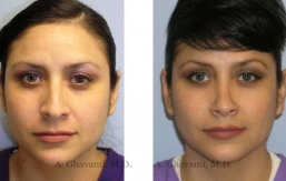 rhinoplasty-nose-beverly-hills-33
