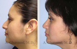 rhinoplasty-nose-beverly-hills-44