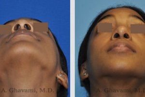 rhinoplasty-nose-beverly-hills-5