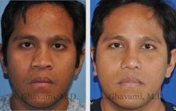 rhinoplasty-nose-beverly-hills-1