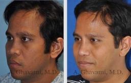 rhinoplasty-nose-beverly-hills-2