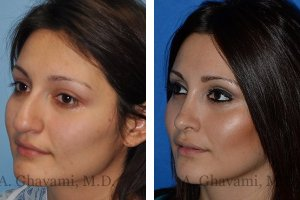rhinoplasty-nose-beverly-hills-3