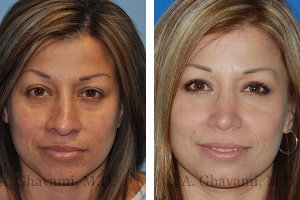 rhinoplasty-nose-beverly-hills-1