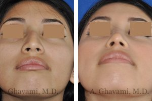 rhinoplasty-nose-beverly-hills-4