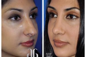 rhinoplasty-nose-beverly-hills-4