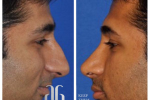 rhinoplasty-nose-beverly-hills-5
