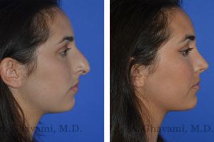 rhinoplasty-p01-02