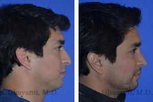 rhinoplasty-p04-03