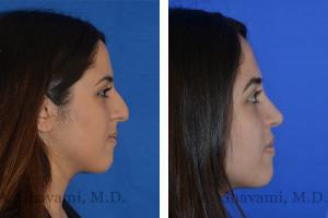 rhinoplasty-p07-03