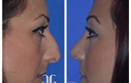rhinoplasty-p09-04