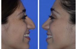 rhinoplasty-p58-03