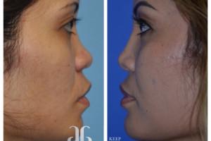 rhinoplasty-p59-03