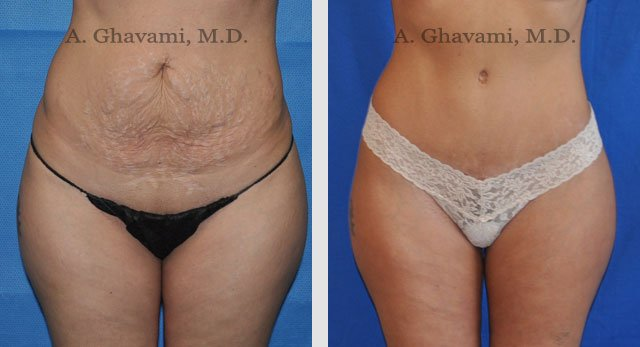 Tummy Tuck Before And After Photos In Beverly Hills Dr