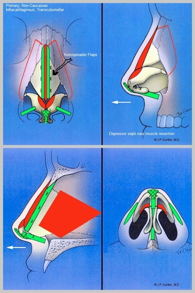 Ethnic Rhinoplasty details of Nose Job based on Ethnic features in Beverly Hills By Dr Ashkan Ghavami, Plastic Surgeon
